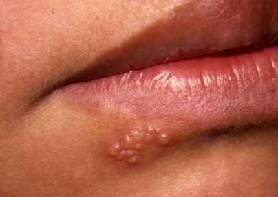 fogyás herpesz