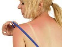 Kit veszélyeztet a bőrrák? Bőrrák tünetei