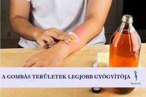 Bőrgombásodás vagy lábgomba esetén azok számára, akik a természetes gyógymódok hívei az almaecettel való lemosást ajánljuk kipróbálásra. A fehér ételecet használatais nagyon hatásos, de az általában enyhe égő érzést eredményez, ezért 5 perc után öblítsük le.