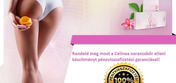cellinea narancsbőr elleni készítmény rendelés