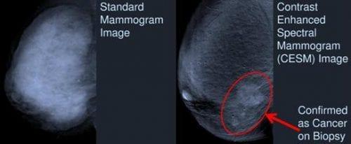 Mellrák diagnózis - új technológia a : CESM Kontraszt fokozott spektrális mammográfia. 3 perc alatt pontosan meg lehet állapítani a mellrák jelenlétét