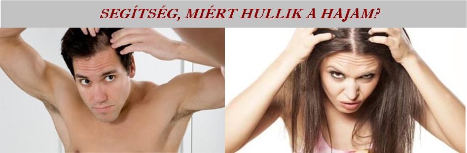 hajhullás kezelése, hajnövesztő, hajhullás, hajhullás ellen házilag, hajhullás kezelése otthon, kopaszodás ellen, foltos hajhullás, hajhullás ellen