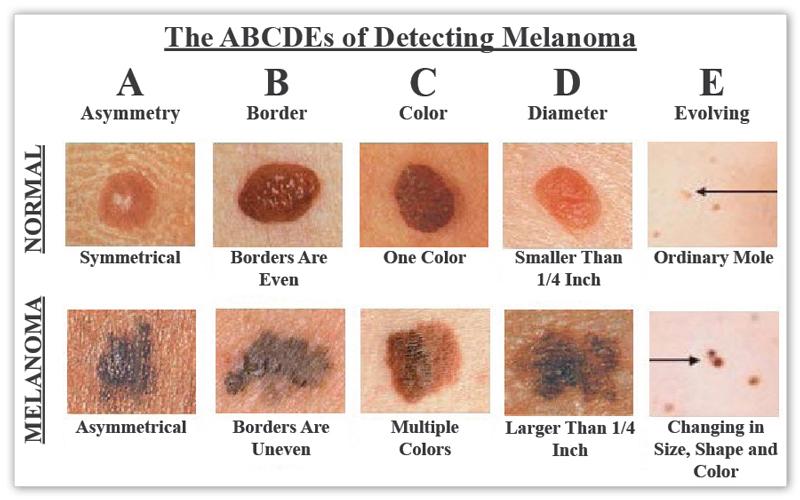 Bőrrák, melanoma jelei