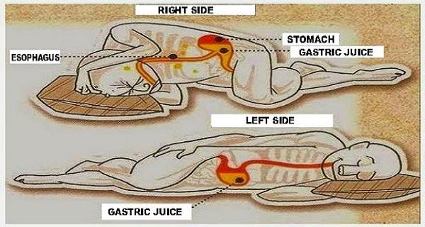 A bal oldali alvás jót tesz az egészségnek!