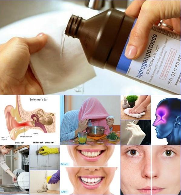 Hydrogen peroxide healing effects