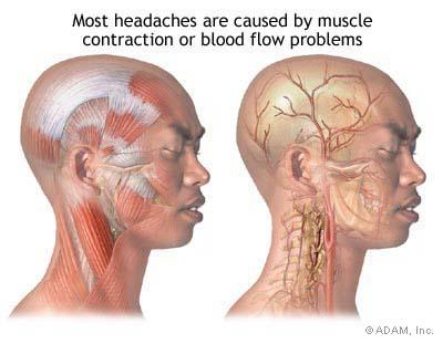 fejfajas migren oka