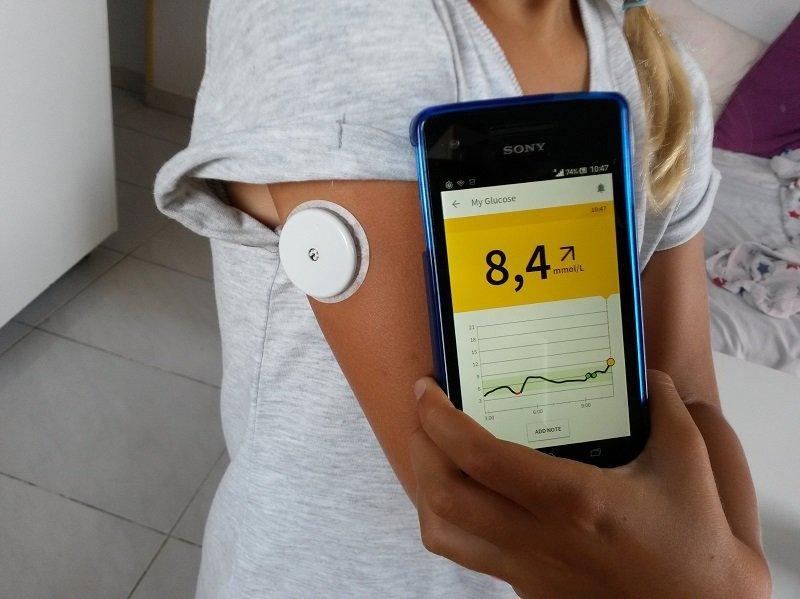 Forradalmi vércukormérő, vércukormonitorozó szenzor, vérminta nélkül