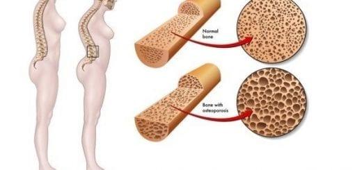 csontritkulas osteoporosis kezelése házilag
