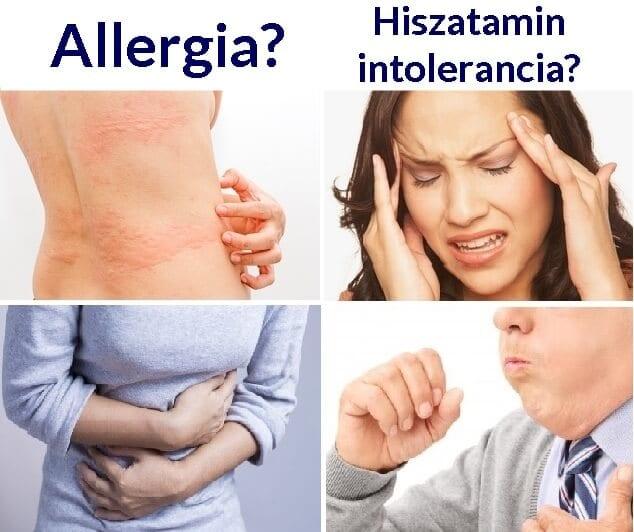 Allergia vagy hisztamin intolerancia? Mi a különbség?